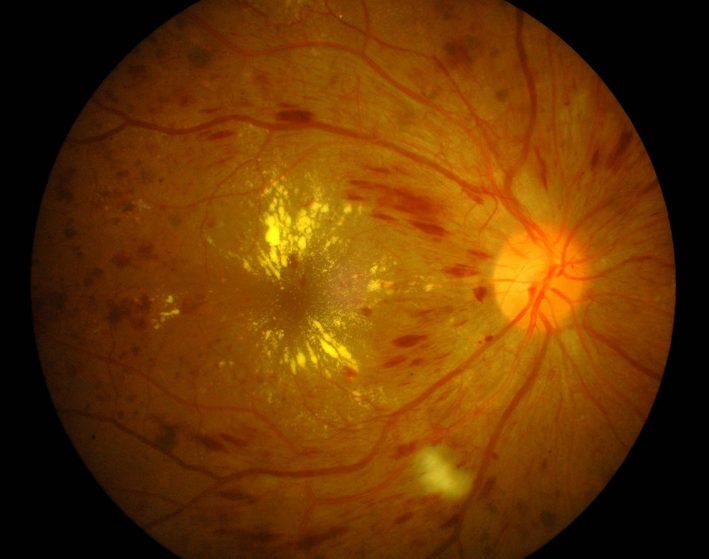 La rétinopathie diabétique est une atteinte sévère de l'œil pouvant provoquer des hémorragies diffuses de la rétine (en conjonction avec une hypertension artérielle), un œdème maculaire, des exsudats rétiniens et des néovaisseaux.
